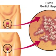Genital Herpes in Women Information